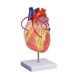 Herz mit Bypass, 2fache Lebensgröße
